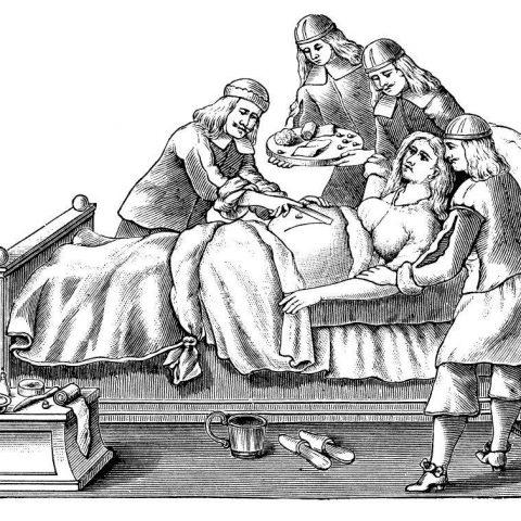 10 фактов о кесаревом сечении